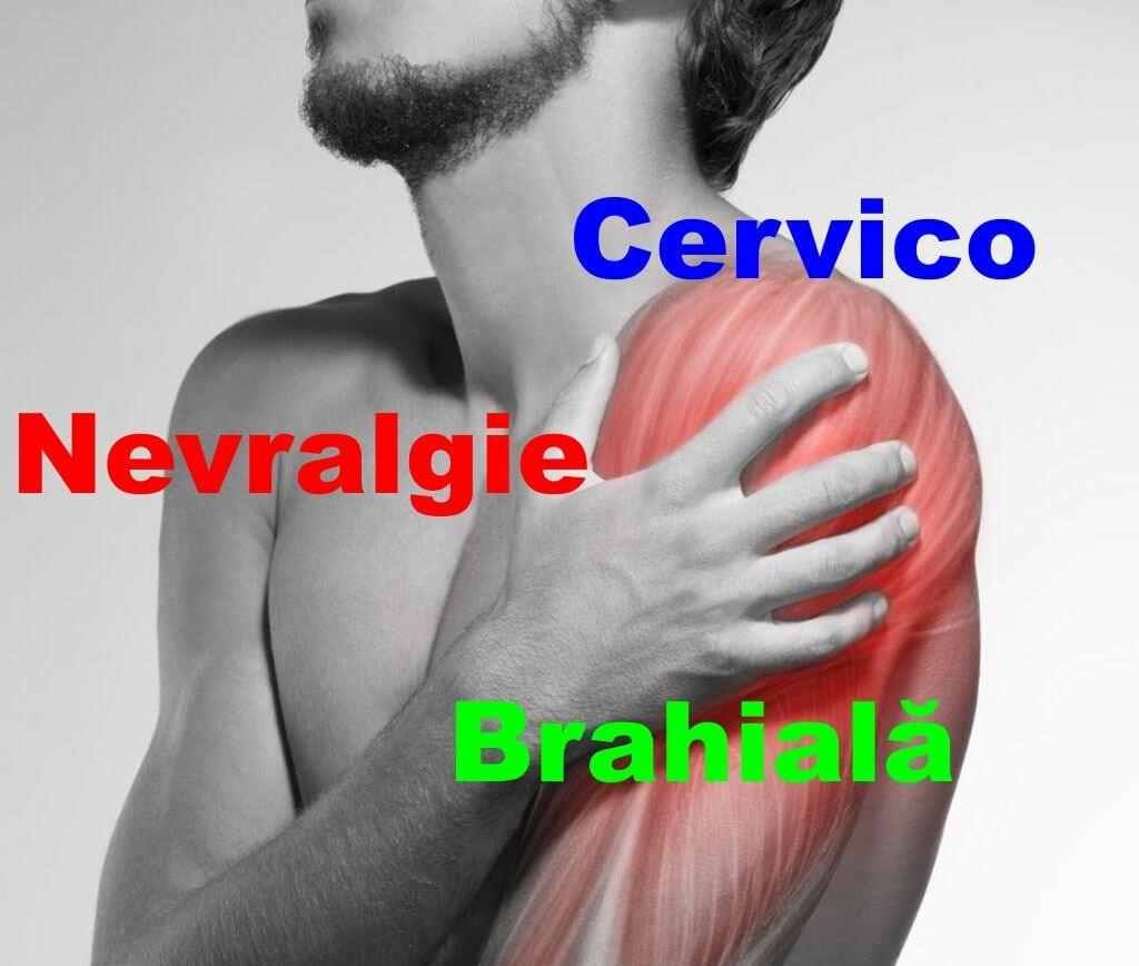 Tratamentul unguentului cu artroză brahială