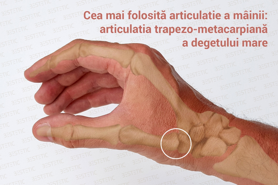 Artrita degetului mare (carpo-metacarpiana)