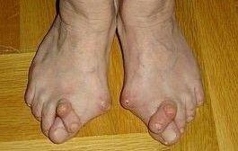 artrita piciorului decât pentru a trata