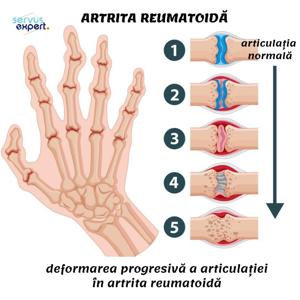 artrita reumatoidă a degetelor de la picioare