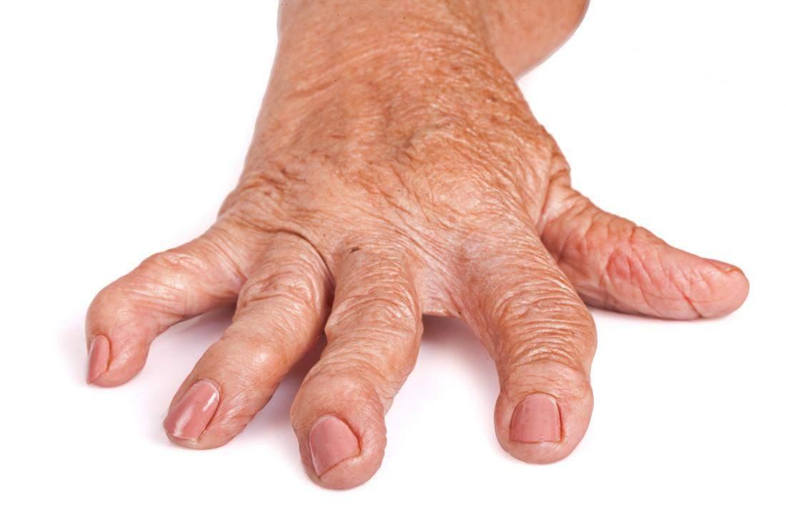 durere cu artroza genunchiului care va ușura