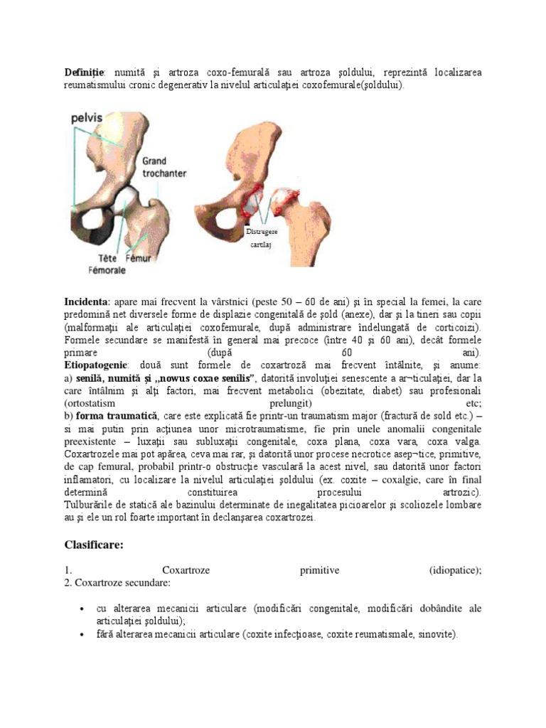 artroza de gradul III a articulației șoldului