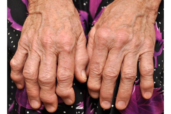 artroza falangei