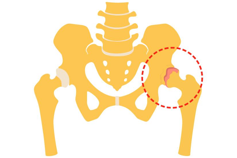 aparat de fizioterapie pentru tratamentul artrozei calmante pentru articulația șoldului
