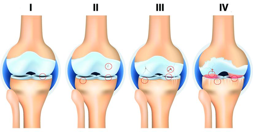 Artroza post-traumatică a genunchiului ,cât durează articulația după o fractură
