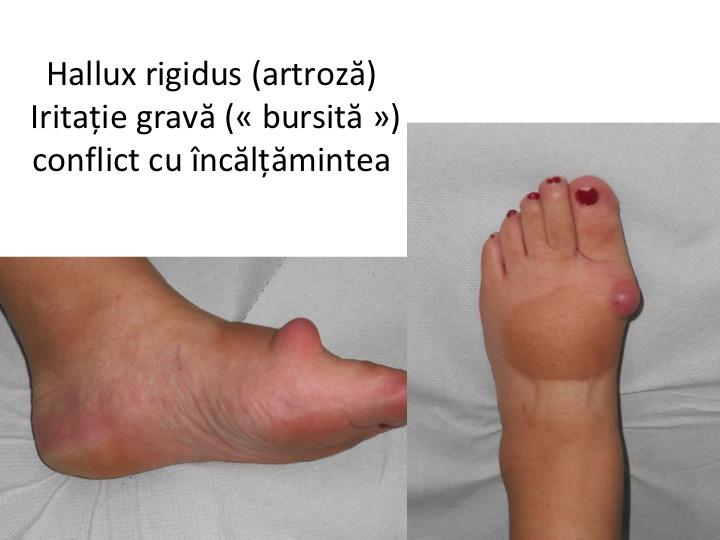 artroza dureri de picioare cremă articulară și musculară
