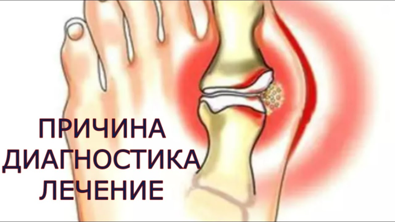 Totul despre artrita: tipuri, simptome, diagnostic, tratament - Boala articulară fungică