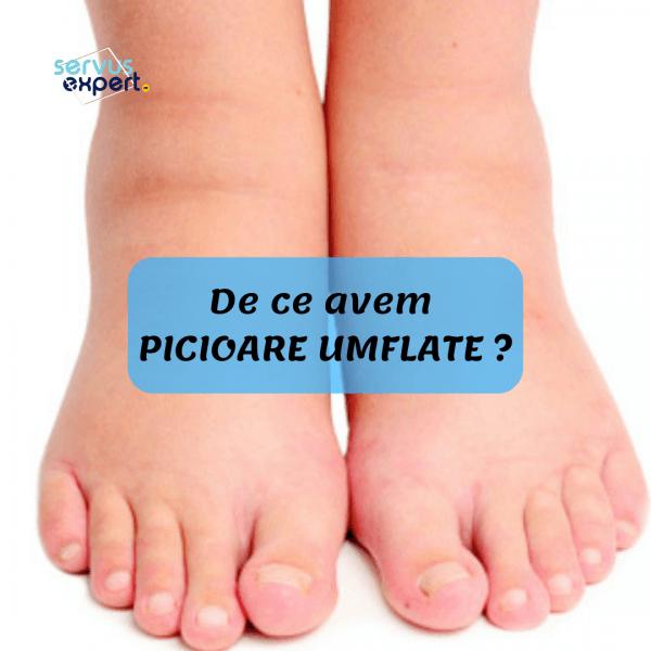tratament pt picioare umflate