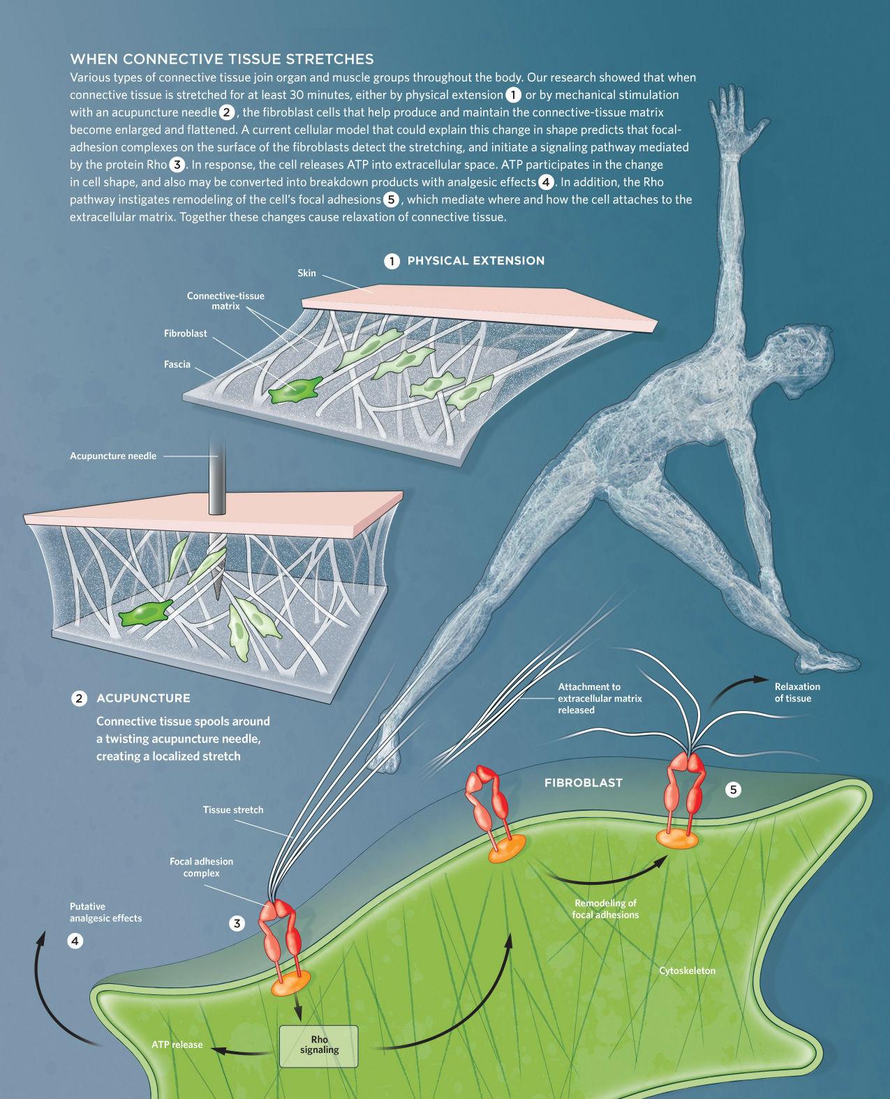 leziuni sportive ale articulației umărului