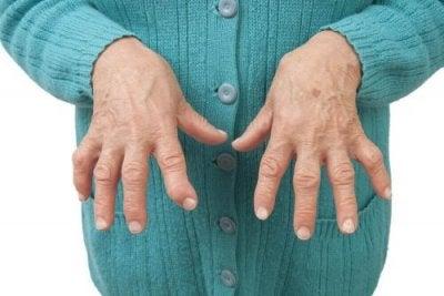 tratamentul artrozei cherepovete