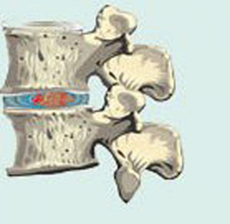 Comprese eficiente pentru osteocondroza cervicală