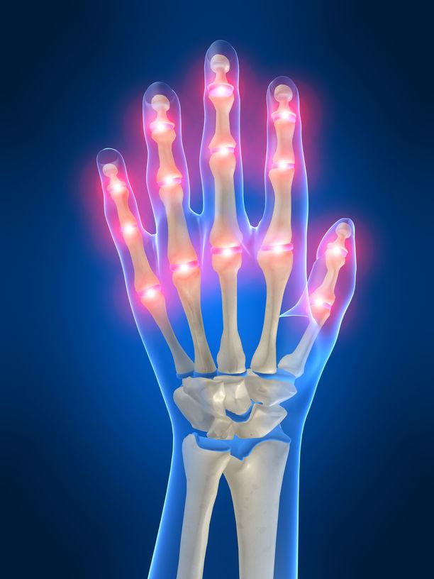 artroza articulației falangeale a piciorului la ridicare, brațul articulației umărului doare