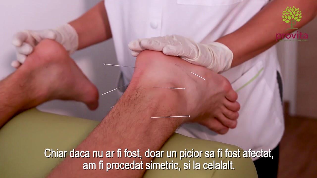acupunctura pentru durerea articulațiilor