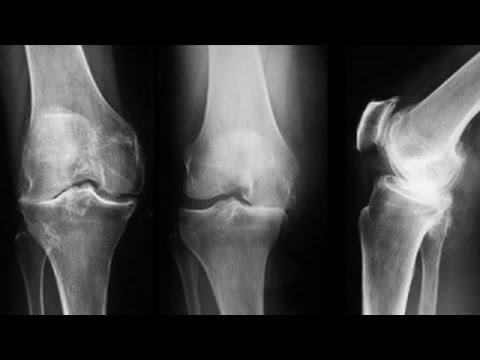 gradul de artrită a genunchiului