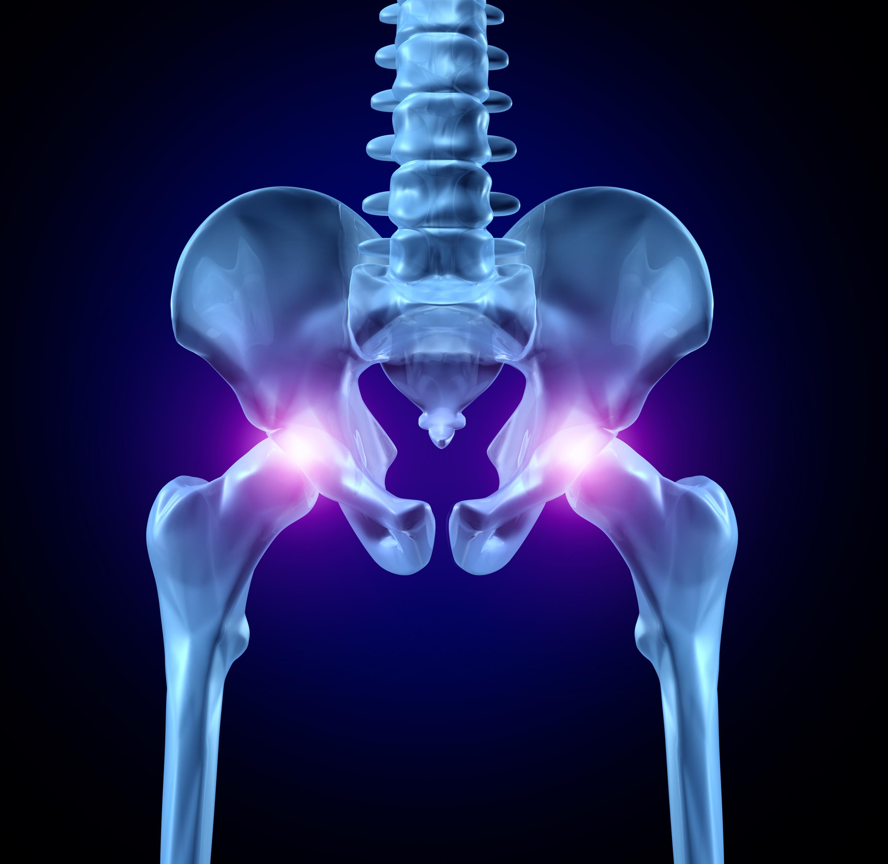 care tratează coxartroza articulației șoldului
