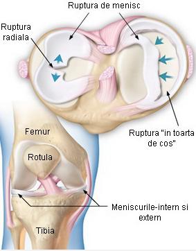Ruptura de menisc – cauze, simptome, tratament - medpark