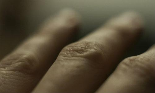 ce durere articulară cu lupus unguent pentru o articulație falsă