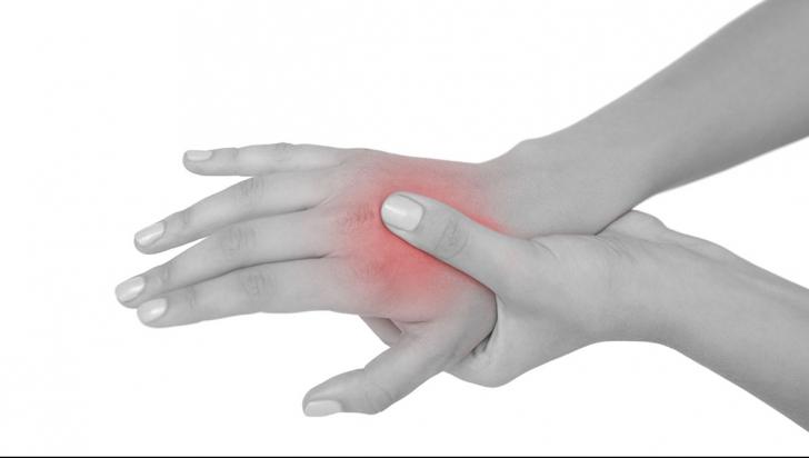 ce este artrita și cum să o tratezi