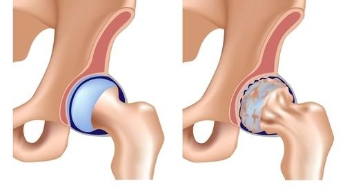 Osteoartrita articulațiilor șoldului antecedente medicale, Simptomatologie