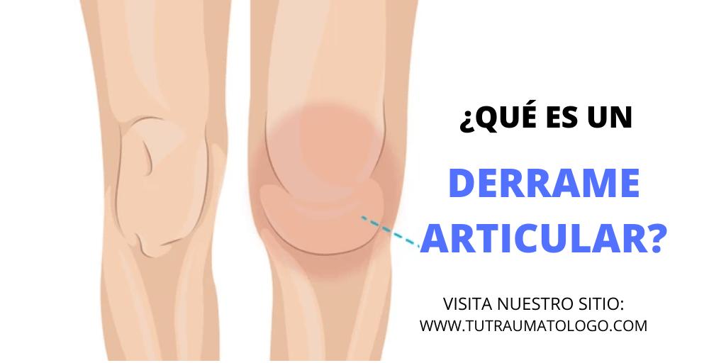 castraveți în tratamentul articulațiilor cum să tratezi acasă sinovita articulației genunchiului