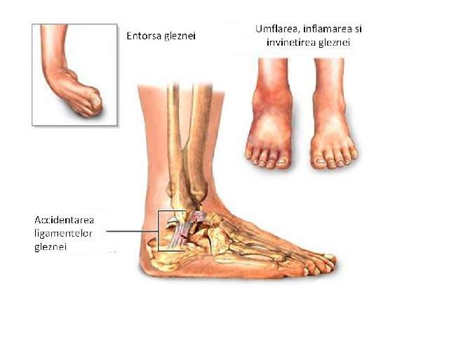 toate articulațiile doare și se crispa decât tratamentul Разрыв передней связки лечения коленного сустава