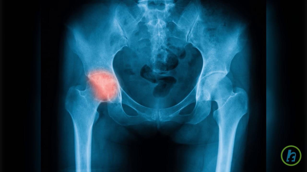cum să tratezi durerea acută în articulația șoldului