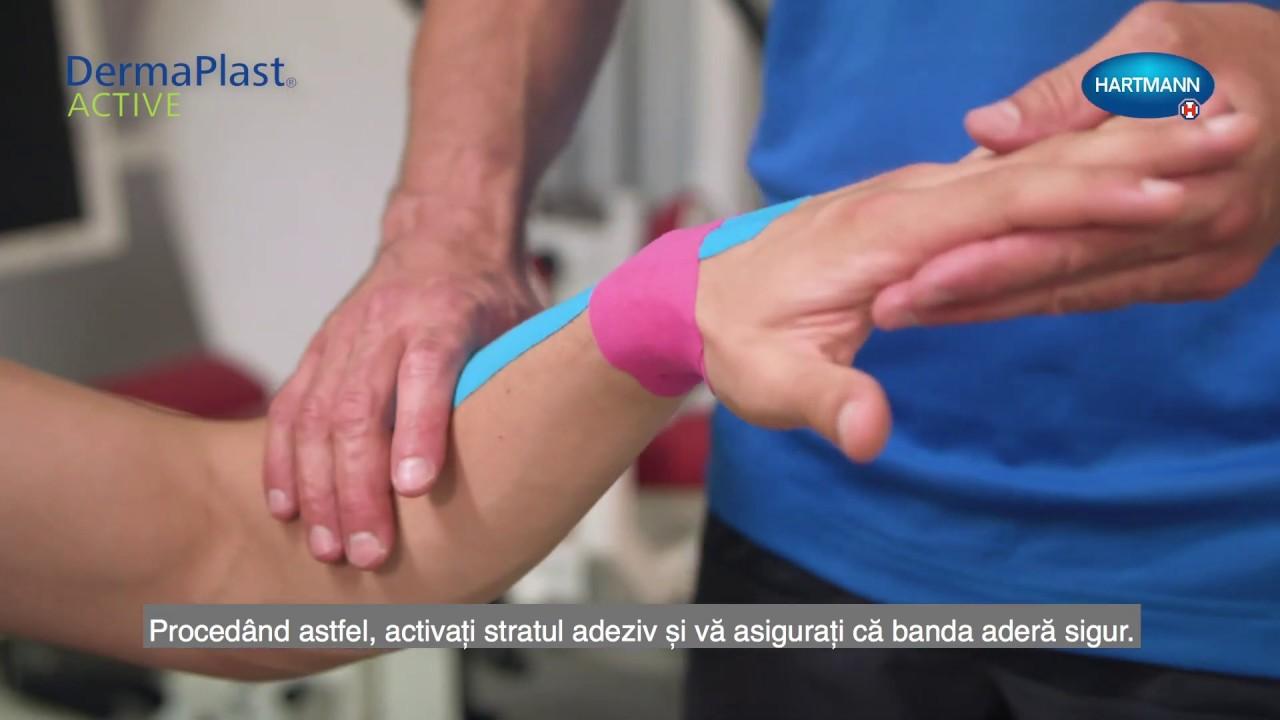 cum se tratează entorsa articulației încheieturii