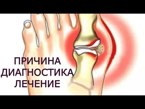 dureri îngenunchează articulația umărului dureri severe de noapte în articulația umărului