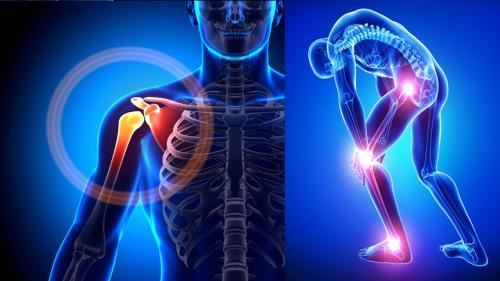 artroza bilaterală a genunchiului tratamentului de gradul II