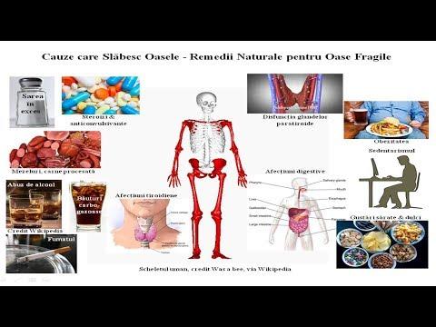 inflamația periostului articulației încheieturii