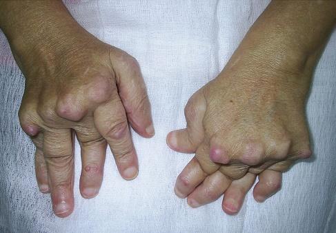 dureri articulare și testosteron