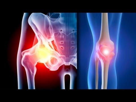simptomele și tratamentul artrozei șoldului cum să evite durerea articulară