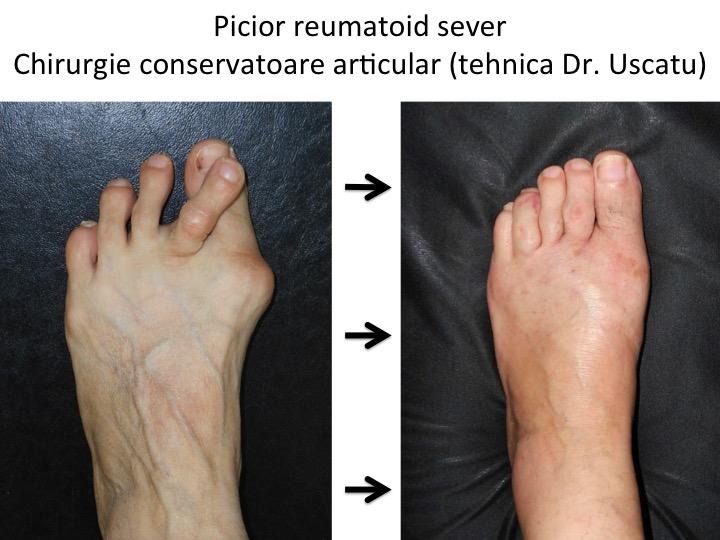 inflamația articulațiilor degetelor de la picioare ale medicamentului dureri severe la nivelul articulațiilor picioarelor