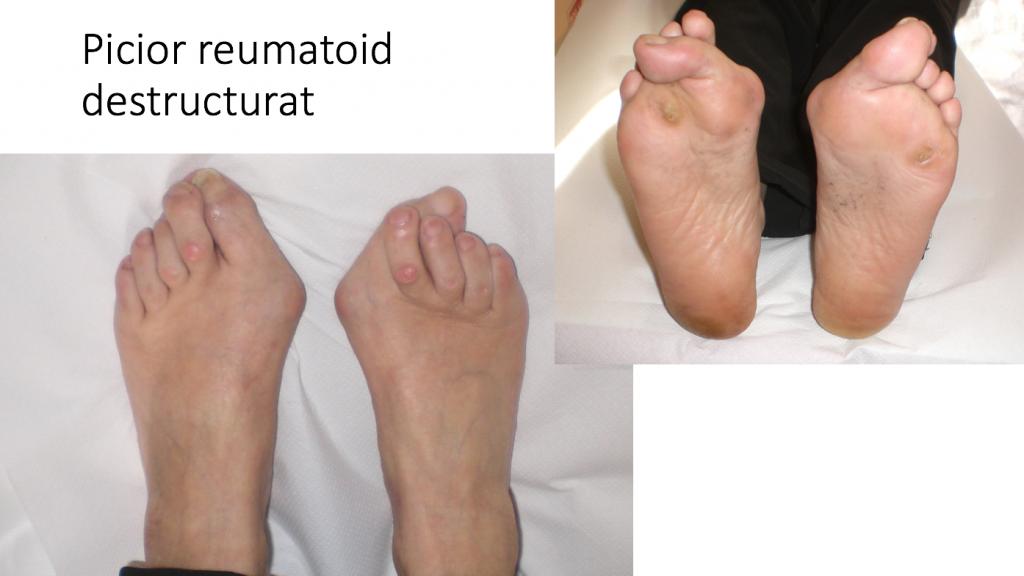 diagnosticul bolii articulare a piciorului durere volatilă în articulațiile piciorului