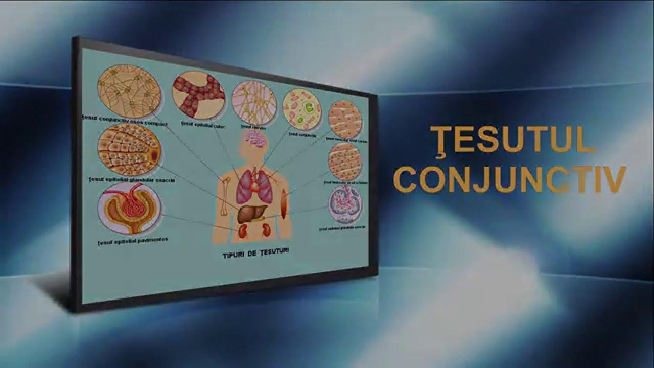 Tumori benigne vs. Tumori maligne, Displazie de țesut conjunctiv la tratamentul adulților