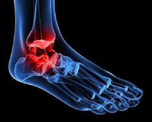 Osteoartroza articulației gleznei cum să amelioreze durerea - ipa-law.ro