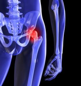durerea la mers dă articulației șoldului