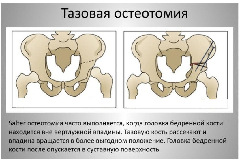 Dureri articulare ale ciobanului german simptom de inflamație articulară
