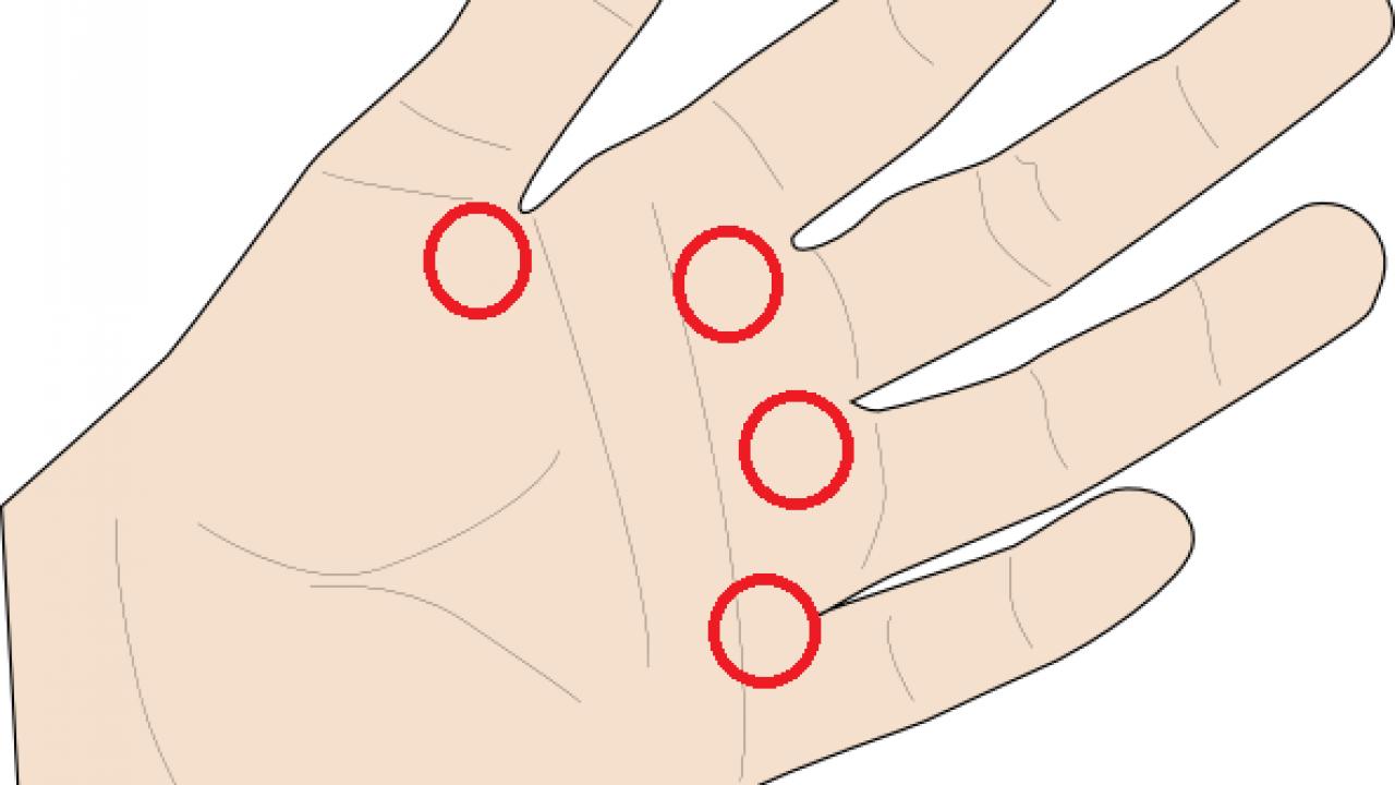 taxa de tratament cu artroză provoacă edemul gleznei