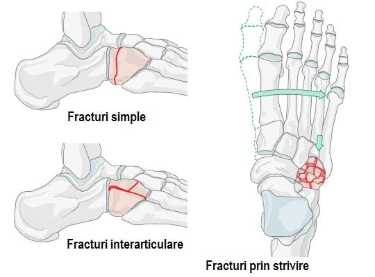 Artroza articulațiilor tarsal-metatarsiene. Tratamentul artrozei genunchiului cu viermi de pământ