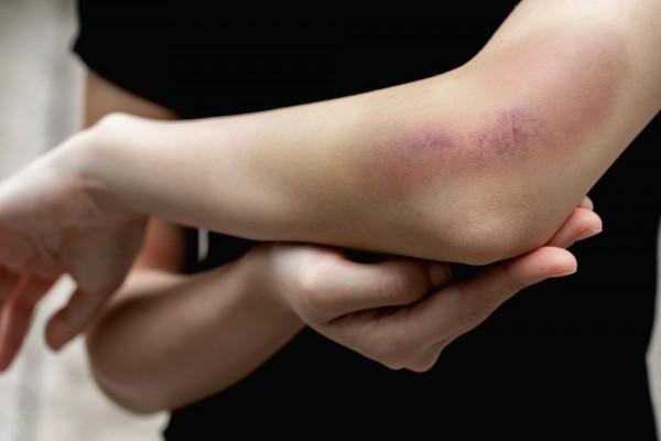 Genunchi Durere Cu Umflături Și Vânătăi - Vânătăi pe spatele genunchiului și vene varicoase