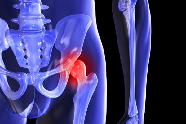 dureri de șold în articulația șoldului și