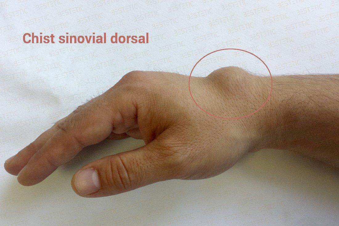 dureri la încheietura mâinii după o cădere