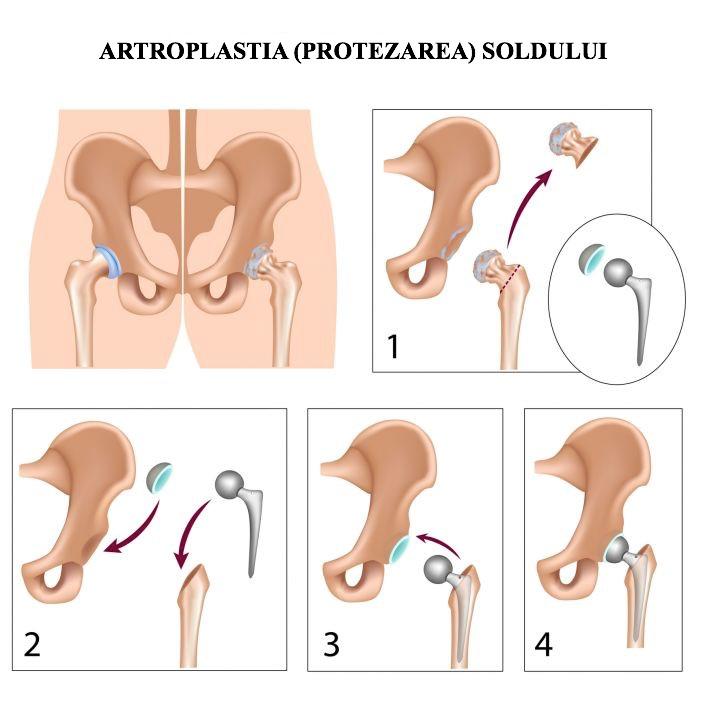 Protezarea șoldului - Dr. Gabriel Ștefănescu