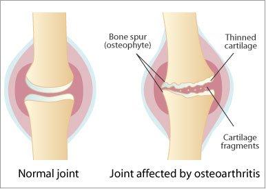 artroza articulației lombare tratamentul osteocondrozei articulației umărului