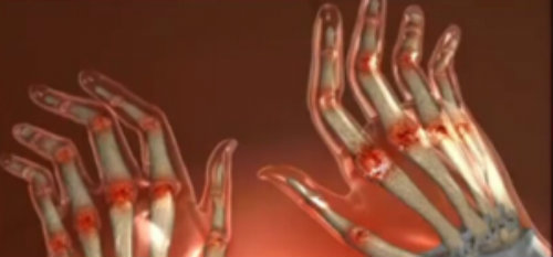 cum începe artrita în brațe