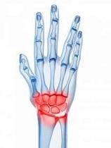 care va ajuta cu durerea articulațiilor umărului metode de tratament cu artroză