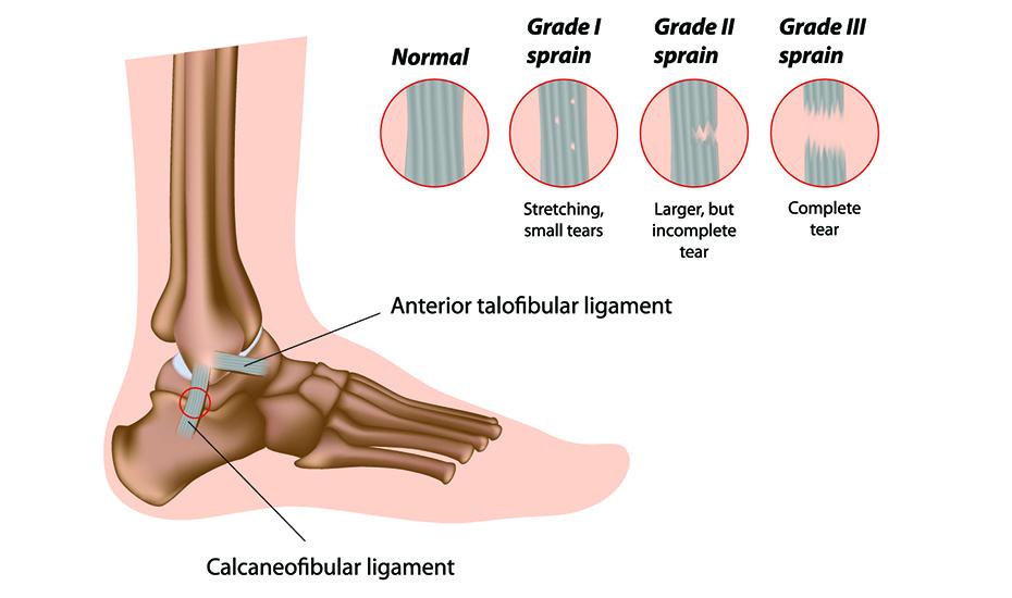 artroza deformantă a articulației piciorului strănut articulațiile dureroase