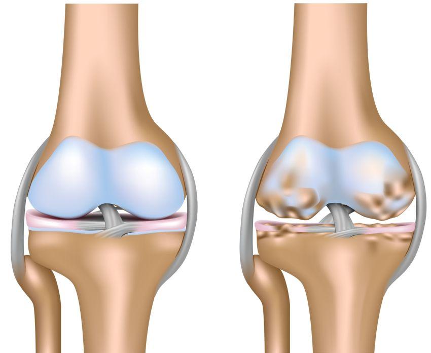 Subcondroplastia- o procedură minim invazivă pentru tratarea pacienților cu dureri de genunchi