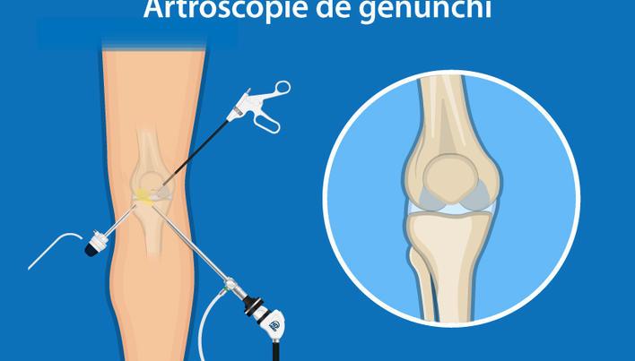 înțepat articulația gleznei Remediul artritei